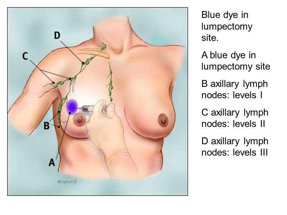 Blue dye in lumpectomy site.