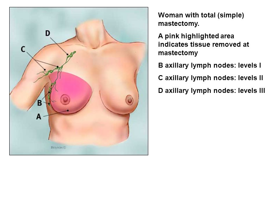 Woman with total (simple) mastectomy.