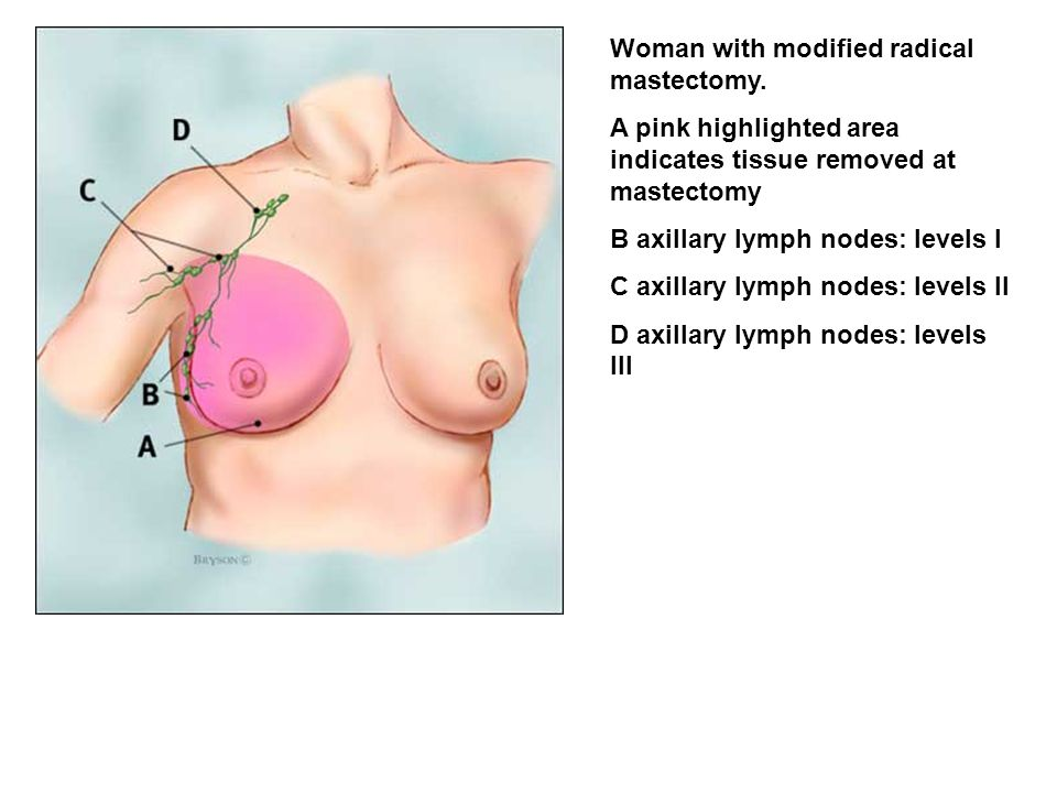 Woman with modified radical mastectomy.