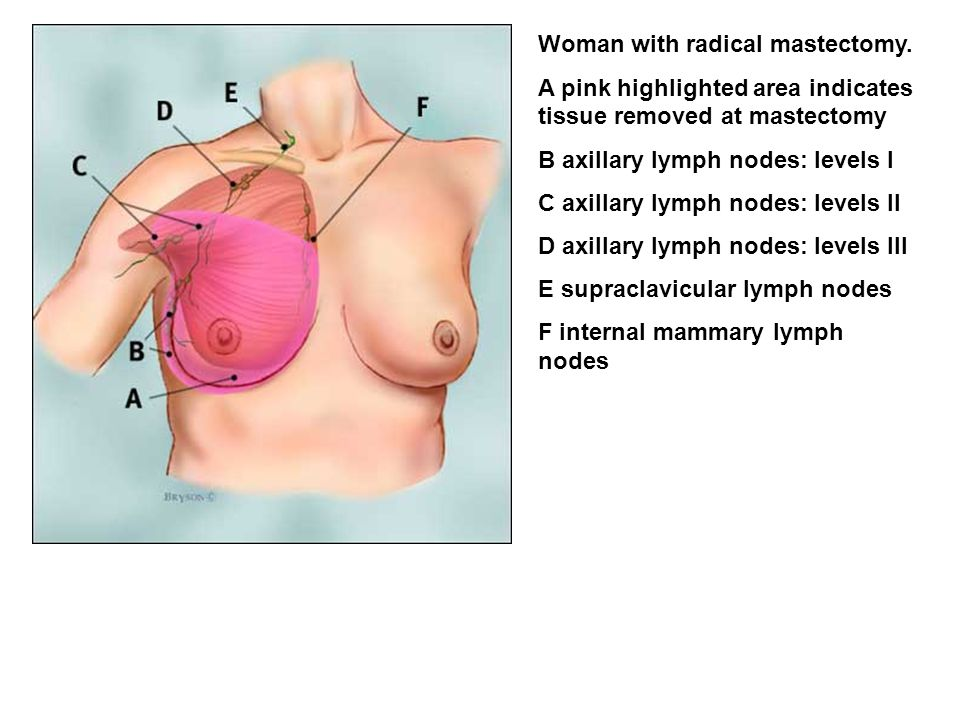 Woman with radical mastectomy.