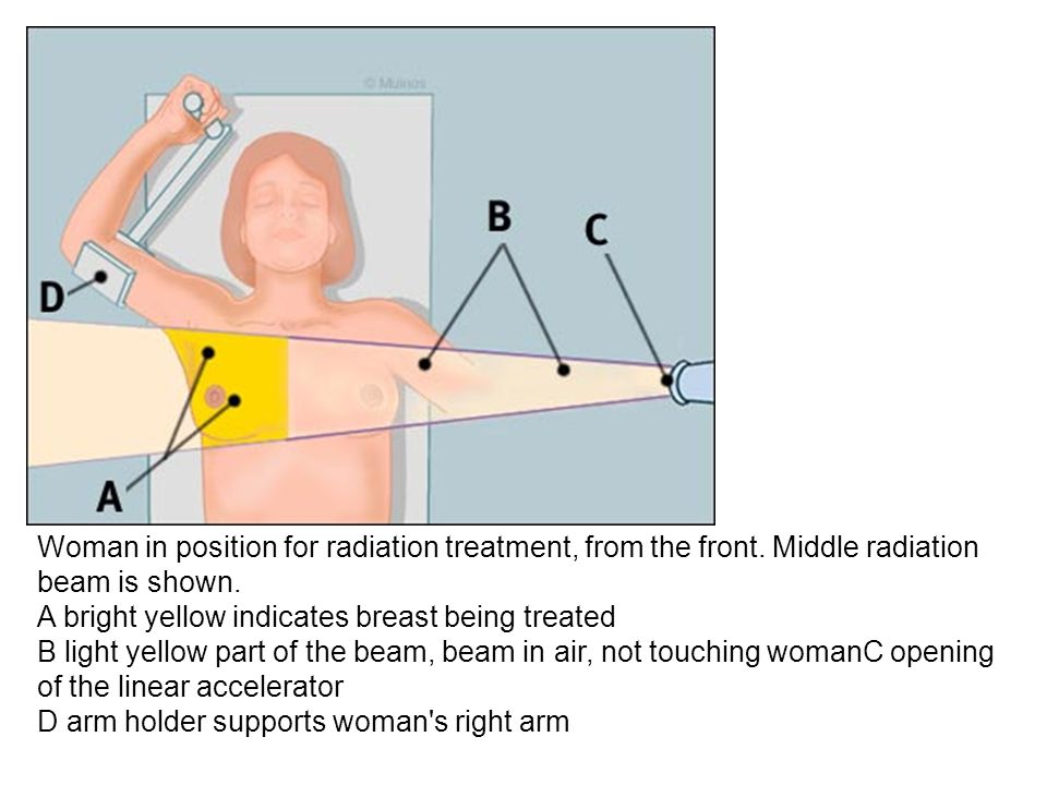 Woman in position for radiation treatment, from the front