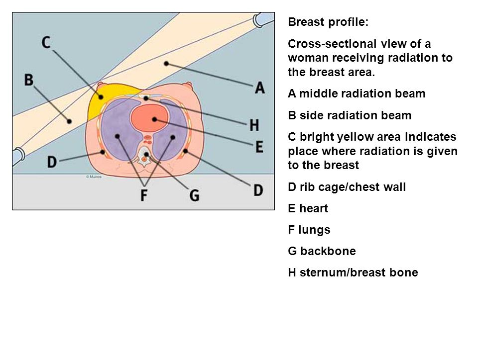 Breast profile: Cross-sectional view of a woman receiving radiation to the breast area. A middle radiation beam.