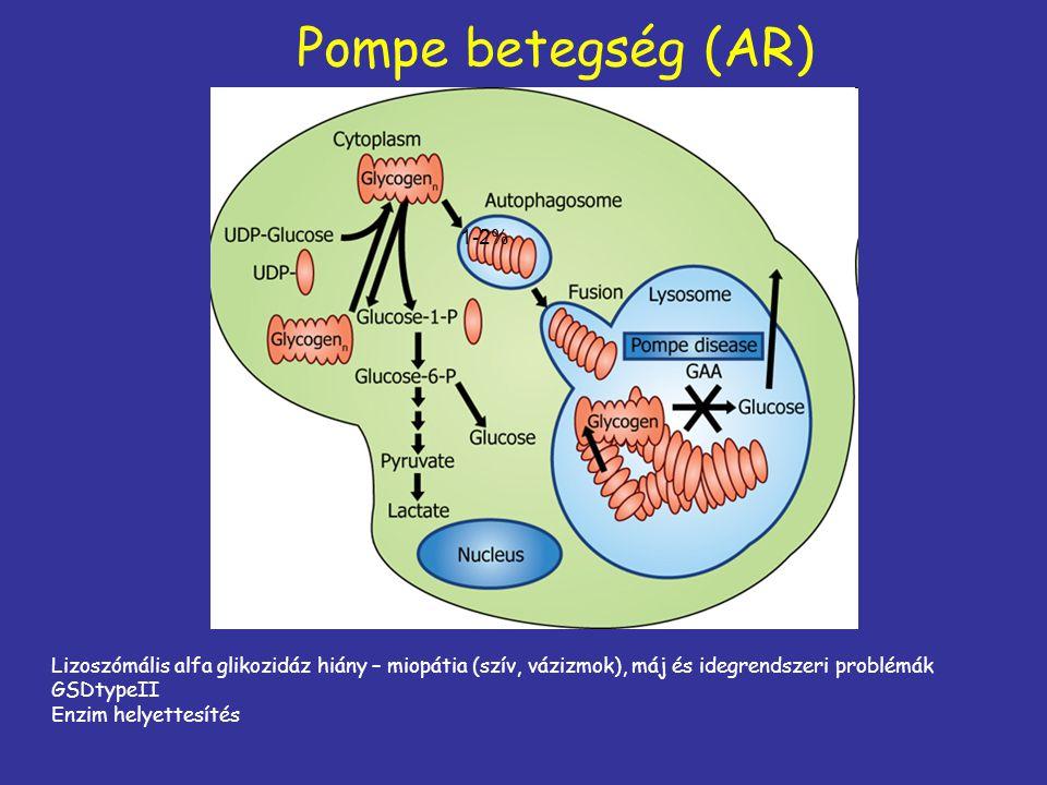 Pompe betegség (AR) 1-2% Lizoszómális alfa glikozidáz hiány – miopátia (szív, vázizmok), máj és idegrendszeri problémák.