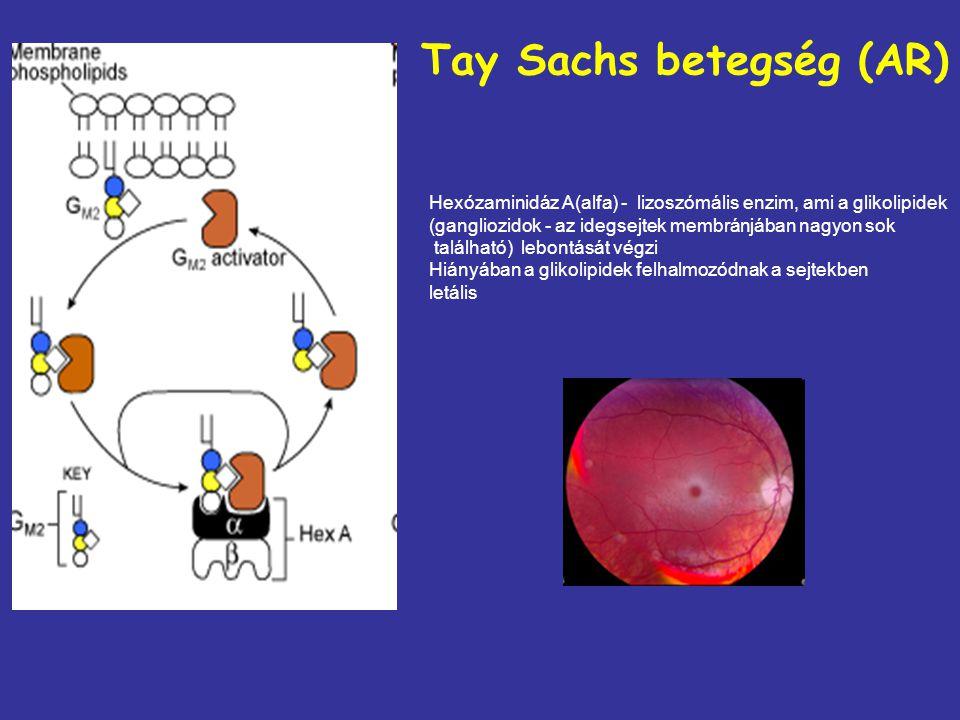 Tay Sachs betegség (AR)
