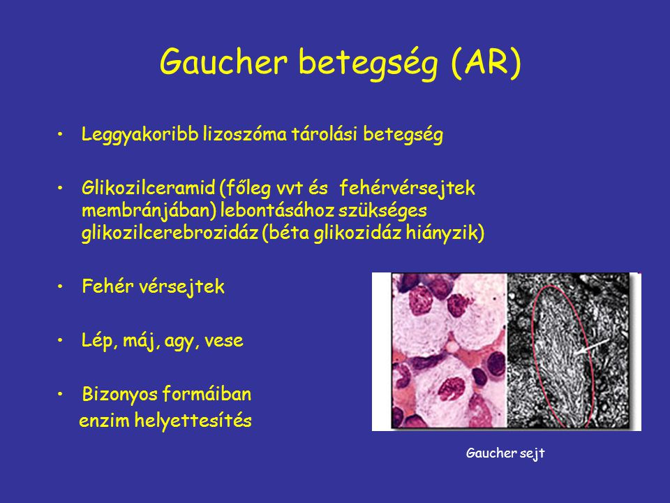 Gaucher betegség (AR) Leggyakoribb lizoszóma tárolási betegség