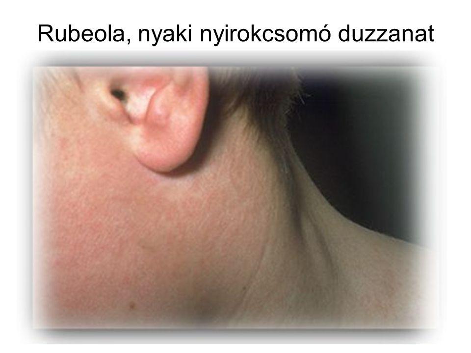 Rubeola, nyaki nyirokcsomó duzzanat