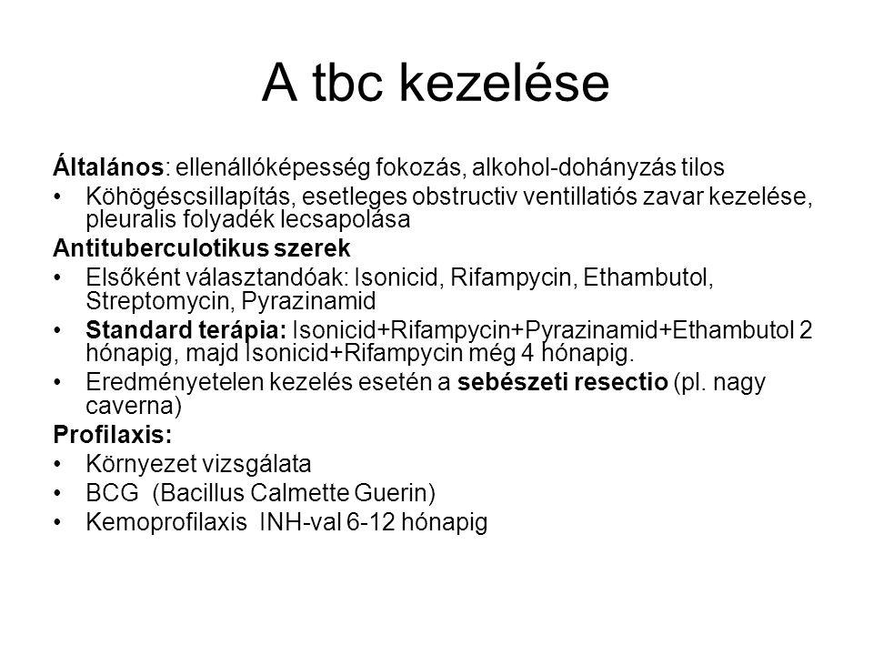 A tbc kezelése Általános: ellenállóképesség fokozás, alkohol-dohányzás tilos.