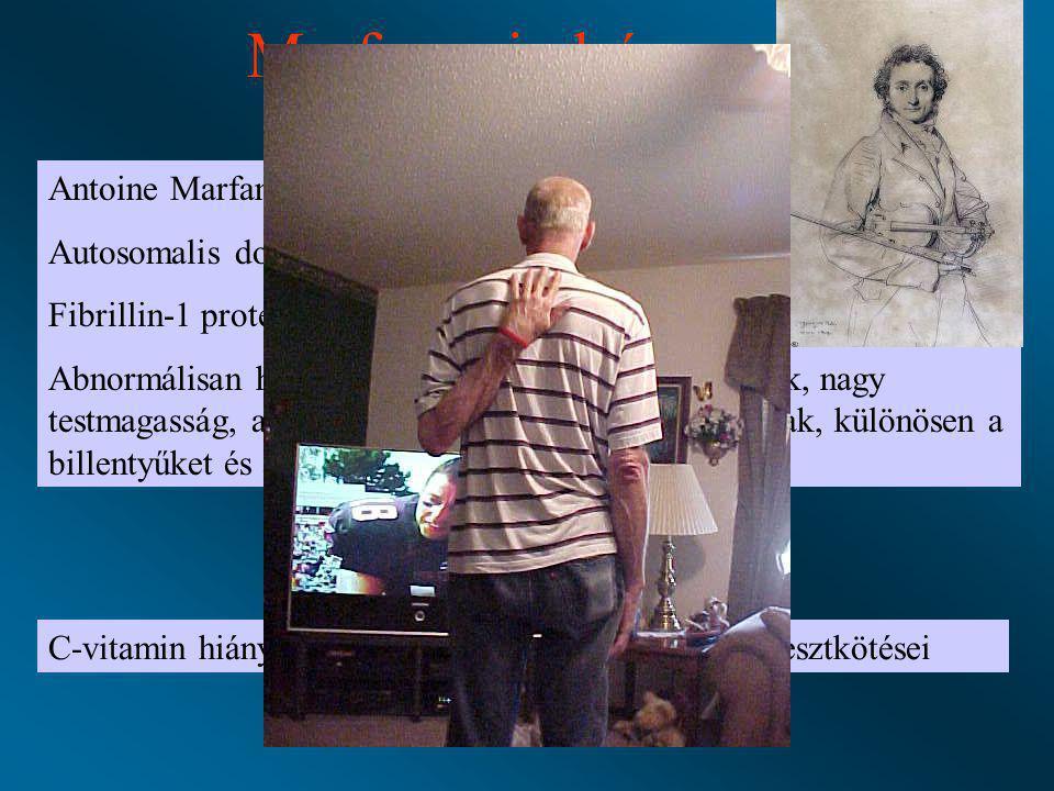 Marfan szindróma Skorbut Antoine Marfan 1899