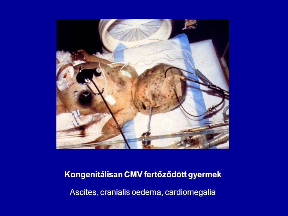 Kongenitálisan CMV fertőződött gyermek