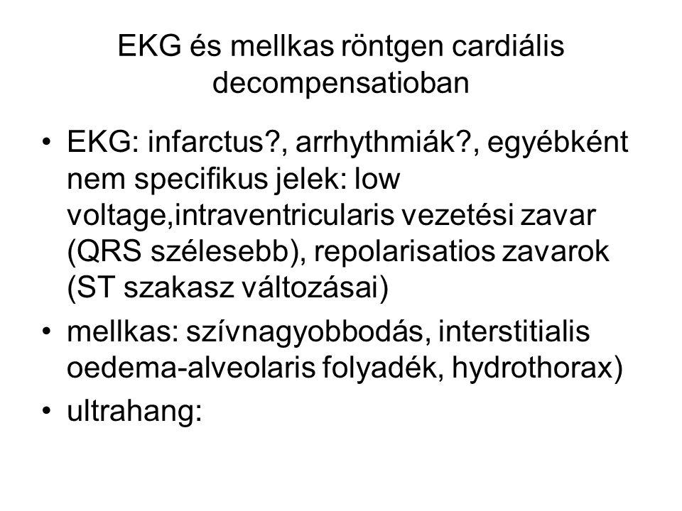EKG és mellkas röntgen cardiális decompensatioban