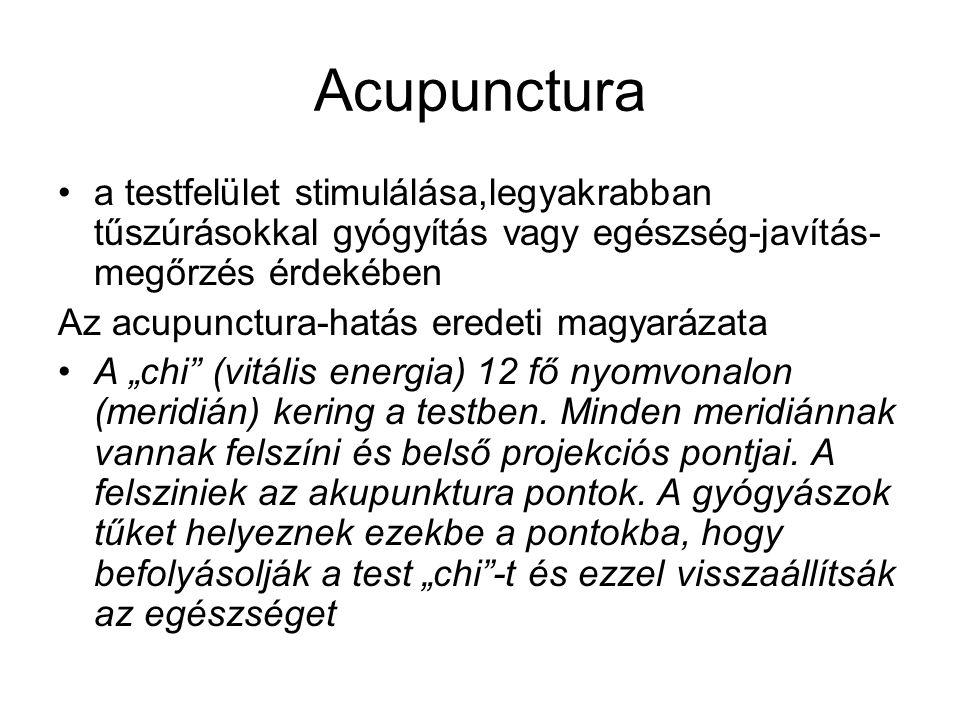 Acupunctura a testfelület stimulálása,legyakrabban tűszúrásokkal gyógyítás vagy egészség-javítás-megőrzés érdekében.