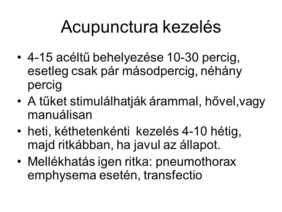 Acupunctura kezelés 4-15 acéltű behelyezése 10-30 percig, esetleg csak pár másodpercig, néhány percig.