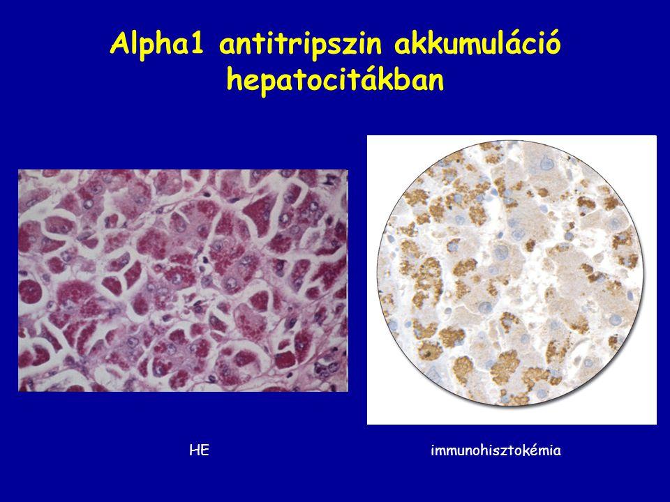 Alpha1 antitripszin akkumuláció hepatocitákban