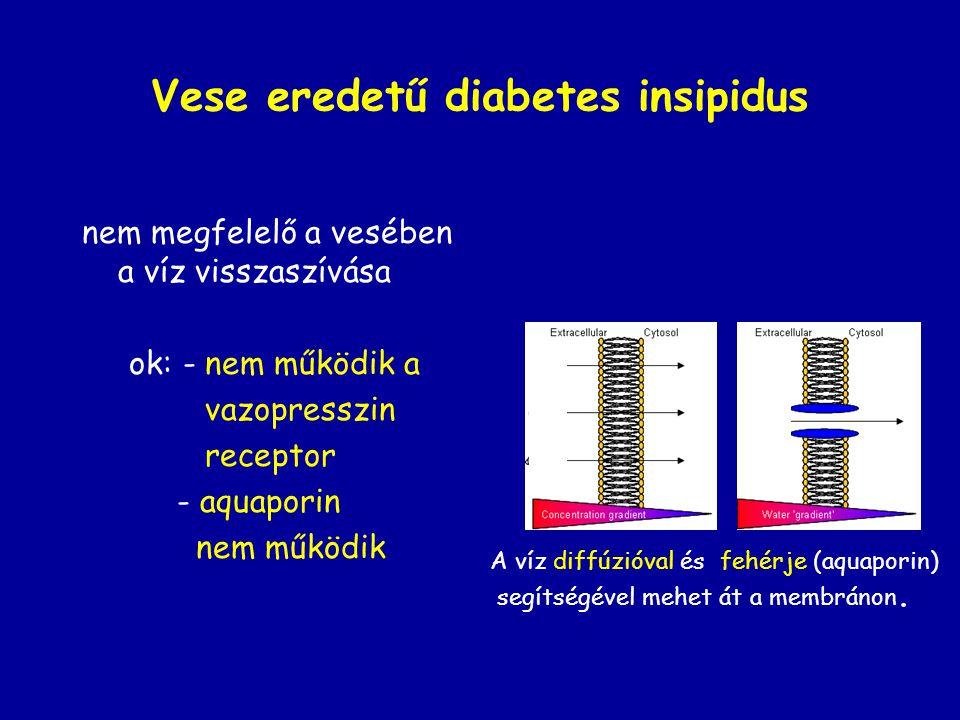Vese eredetű diabetes insipidus