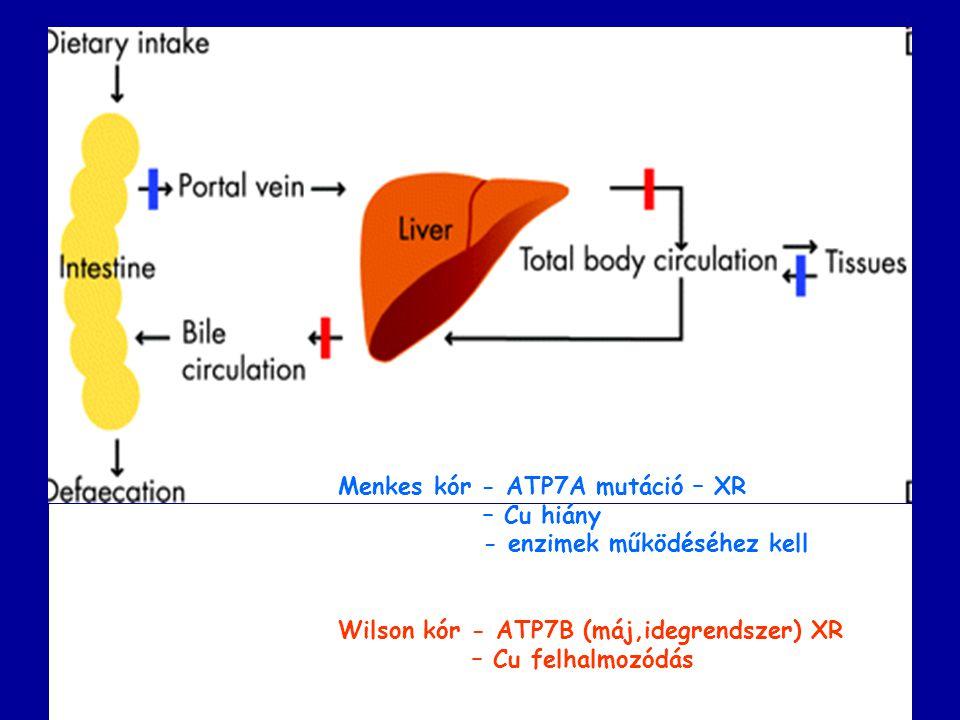 Menkes kór - ATP7A mutáció – XR