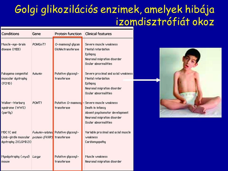 Golgi glikozilációs enzimek, amelyek hibája izomdisztrófiát okoz