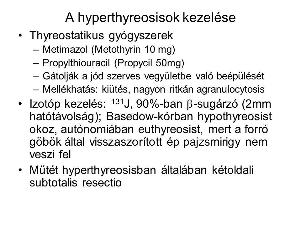 A hyperthyreosisok kezelése