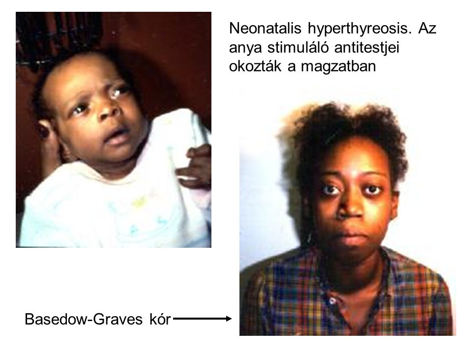 Neonatalis hyperthyreosis