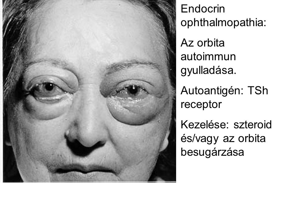 Endocrin ophthalmopathia: