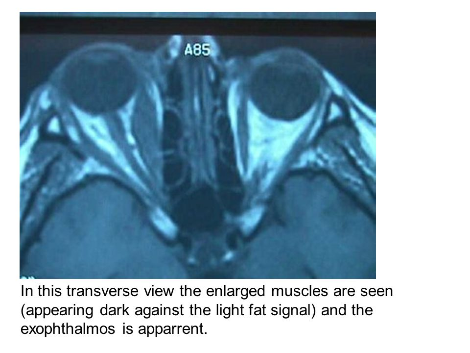 In this transverse view the enlarged muscles are seen (appearing dark against the light fat signal) and the exophthalmos is apparrent.