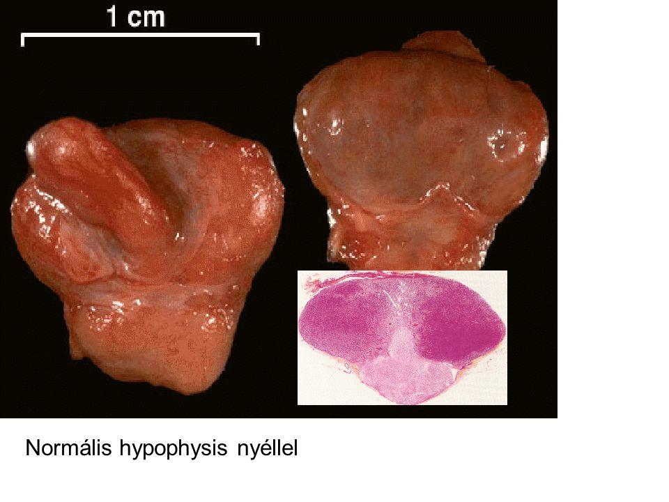 Normális hypophysis nyéllel