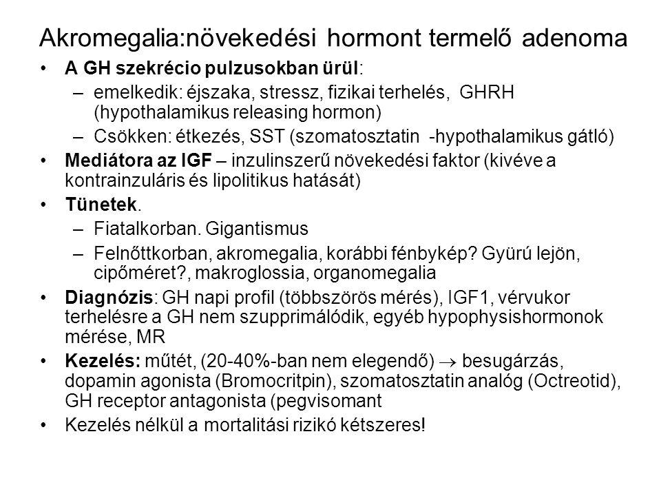 Akromegalia:növekedési hormont termelő adenoma