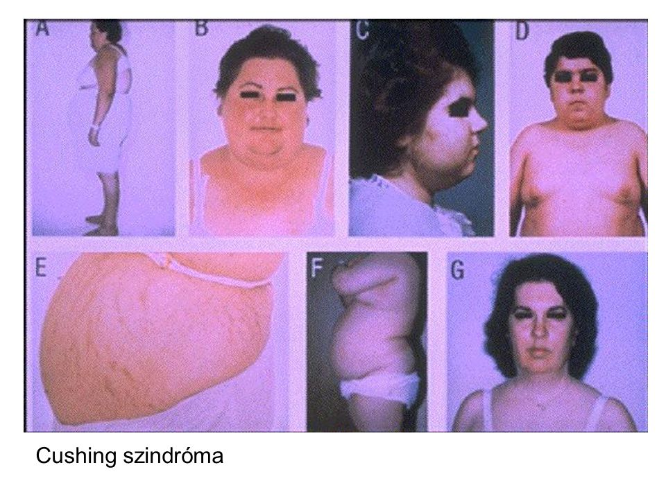 Cushing szindróma