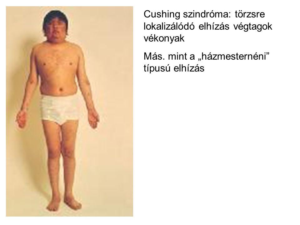 Cushing szindróma: törzsre lokalizálódó elhízás végtagok vékonyak