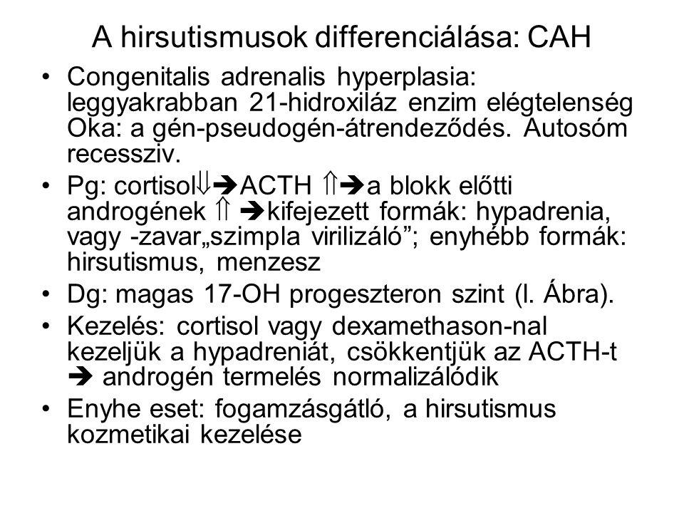 A hirsutismusok differenciálása: CAH