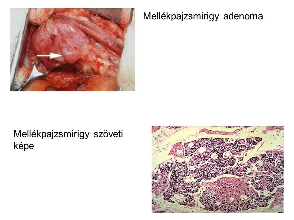 Mellékpajzsmirigy adenoma