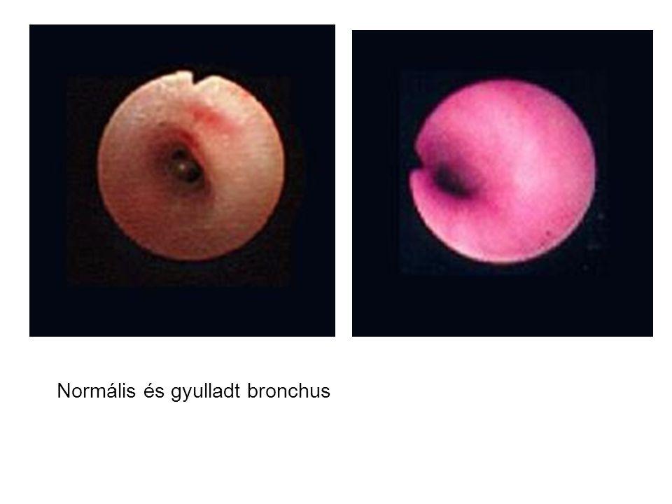 Normális és gyulladt bronchus