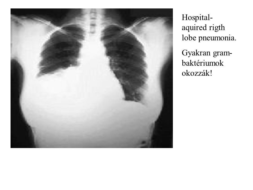 Hospital- aquired rigth lobe pneumonia.
