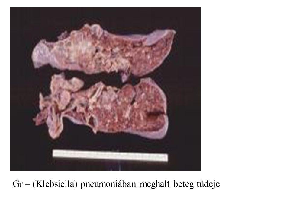 Gr – (Klebsiella) pneumoniában meghalt beteg tüdeje