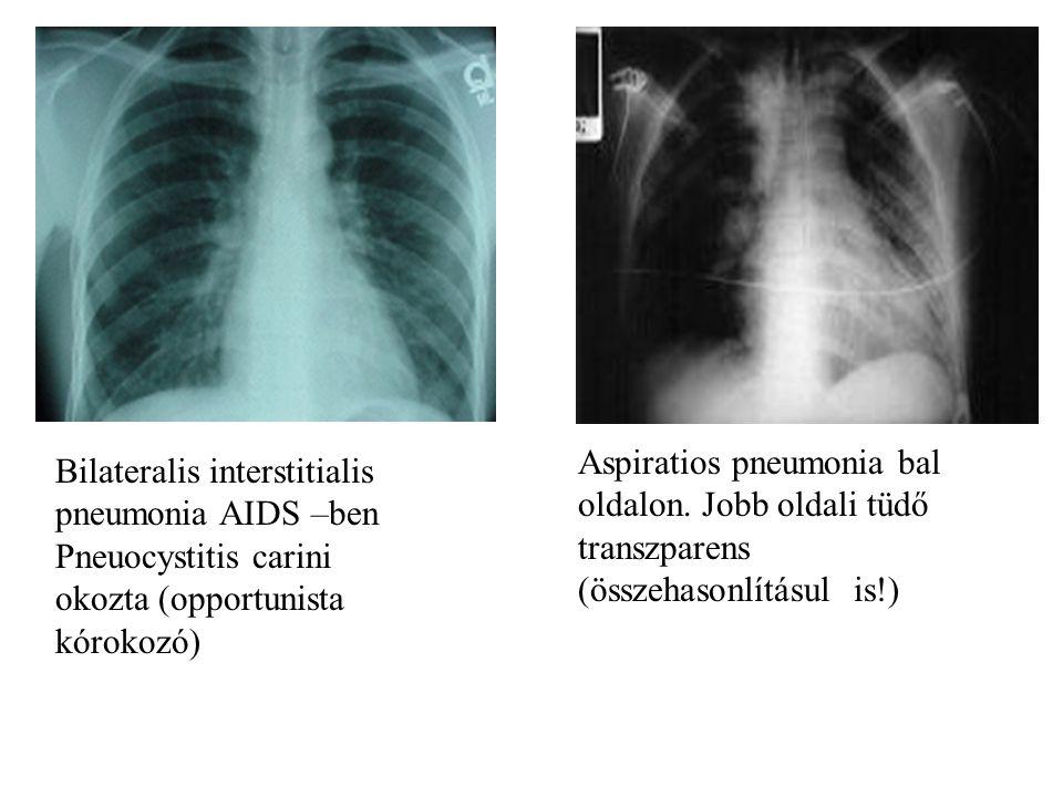 Aspiratios pneumonia bal oldalon