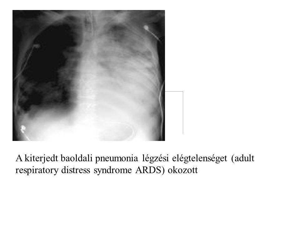 A kiterjedt baoldali pneumonia légzési elégtelenséget (adult respiratory distress syndrome ARDS) okozott.