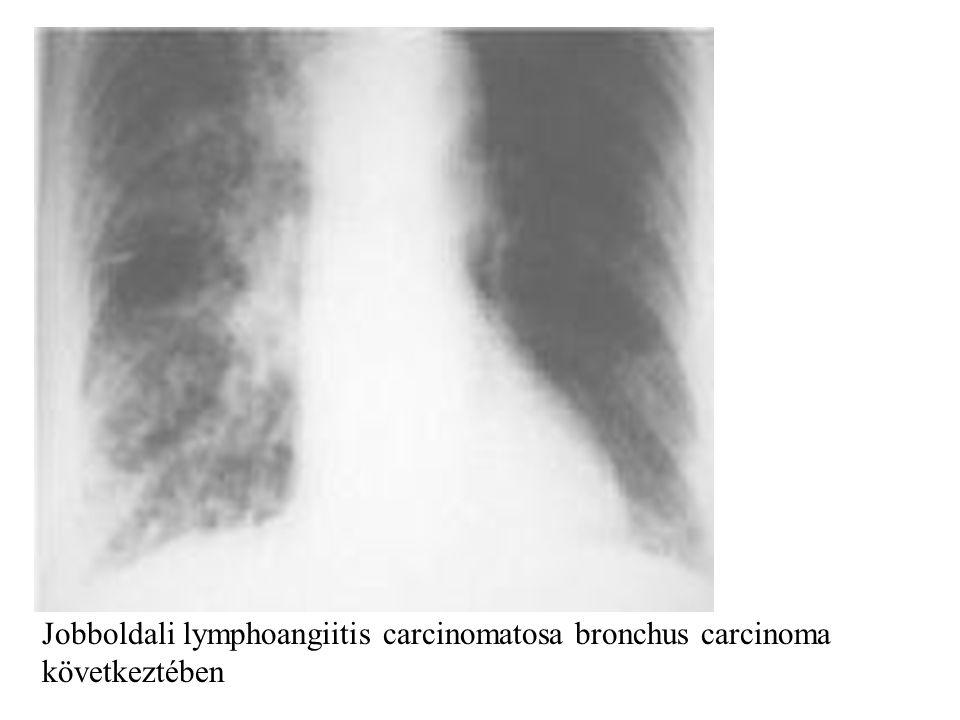 Jobboldali lymphoangiitis carcinomatosa bronchus carcinoma következtében