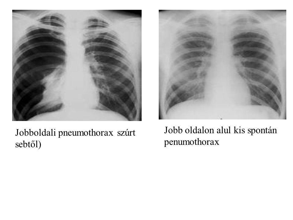 Jobb oldalon alul kis spontán penumothorax