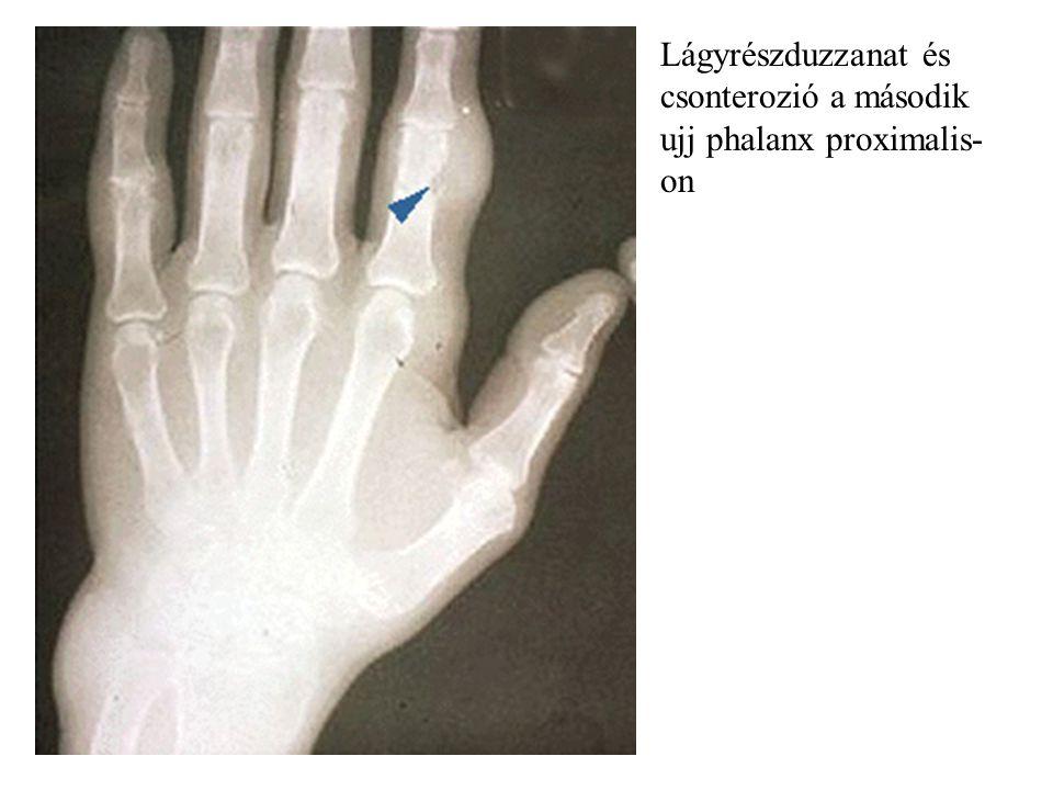 Lágyrészduzzanat és csonterozió a második ujj phalanx proximalis-on