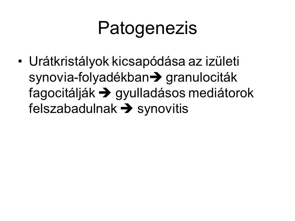 Patogenezis Urátkristályok kicsapódása az izületi synovia-folyadékban granulociták fagocitálják  gyulladásos mediátorok felszabadulnak  synovitis.