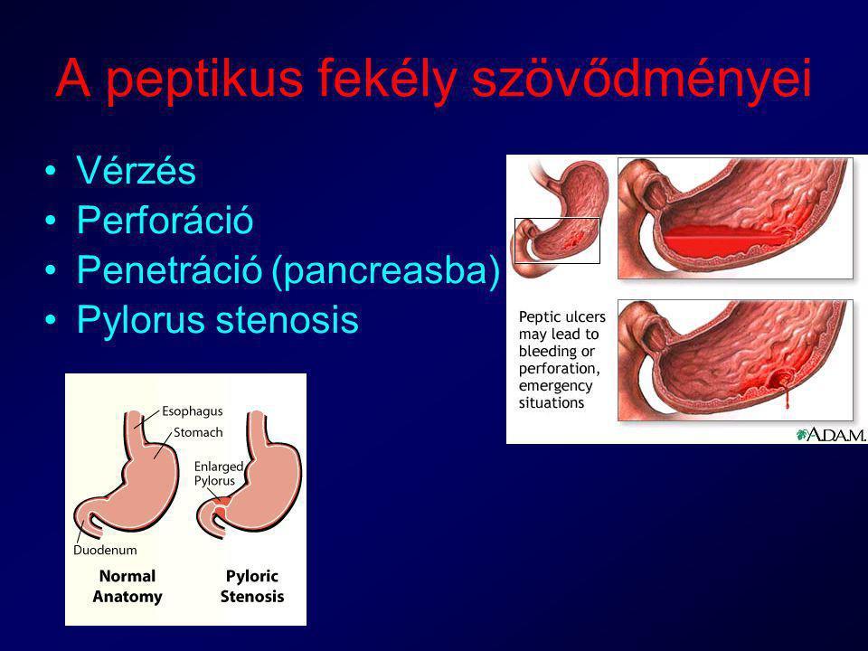 A peptikus fekély szövődményei