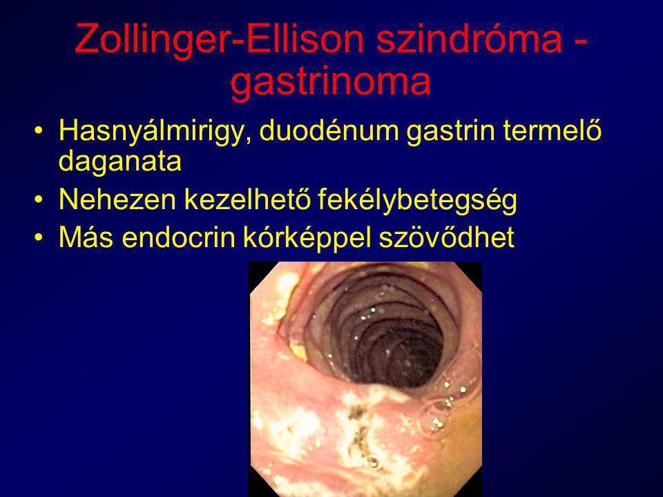 Zollinger-Ellison szindróma - gastrinoma