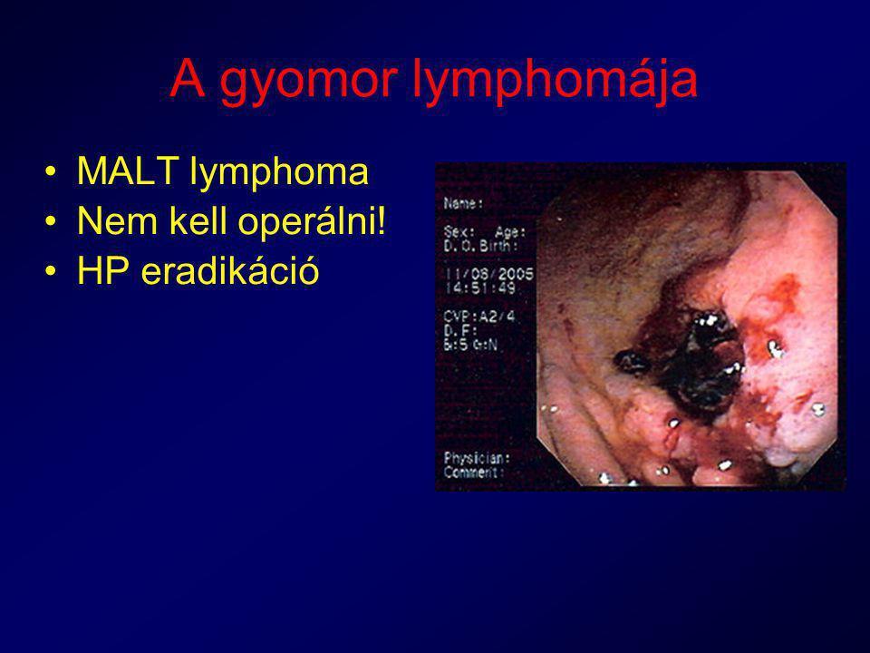 A gyomor lymphomája MALT lymphoma Nem kell operálni! HP eradikáció