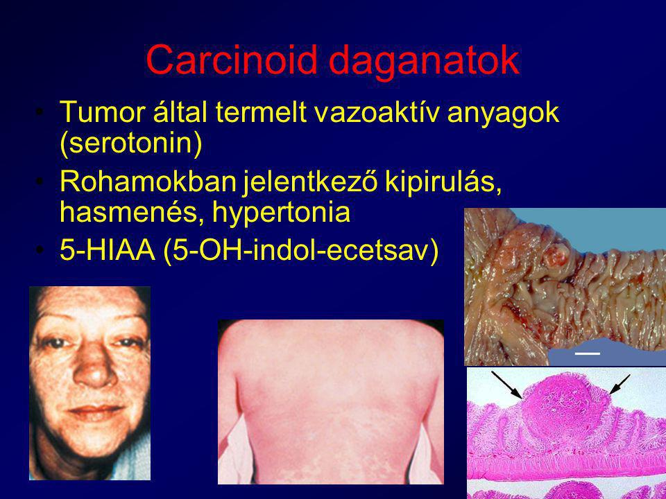Carcinoid daganatok Tumor által termelt vazoaktív anyagok (serotonin)