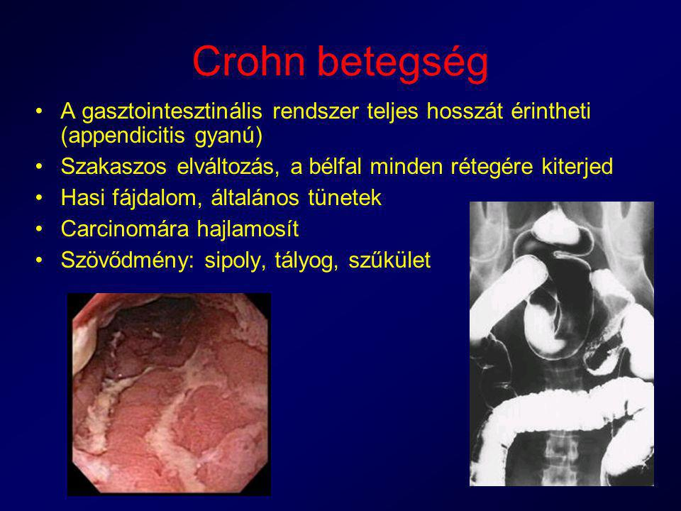 Crohn betegség A gasztointesztinális rendszer teljes hosszát érintheti (appendicitis gyanú) Szakaszos elváltozás, a bélfal minden rétegére kiterjed.