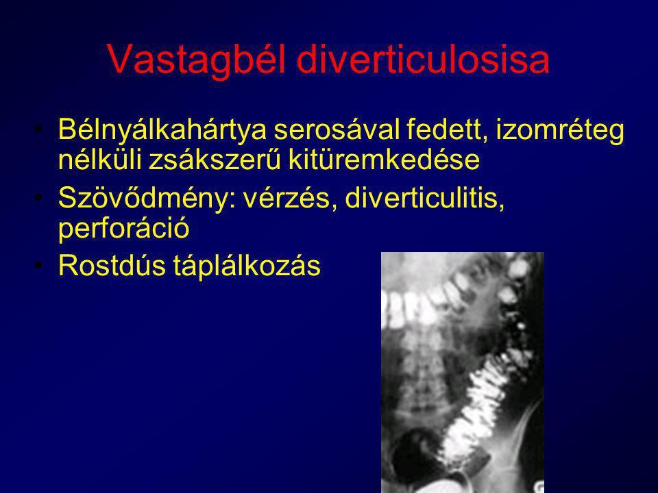 Vastagbél diverticulosisa