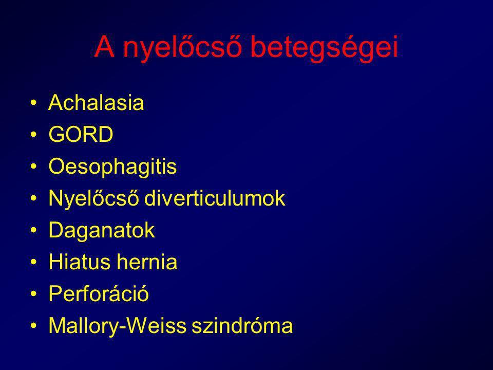 A nyelőcső betegségei Achalasia GORD Oesophagitis