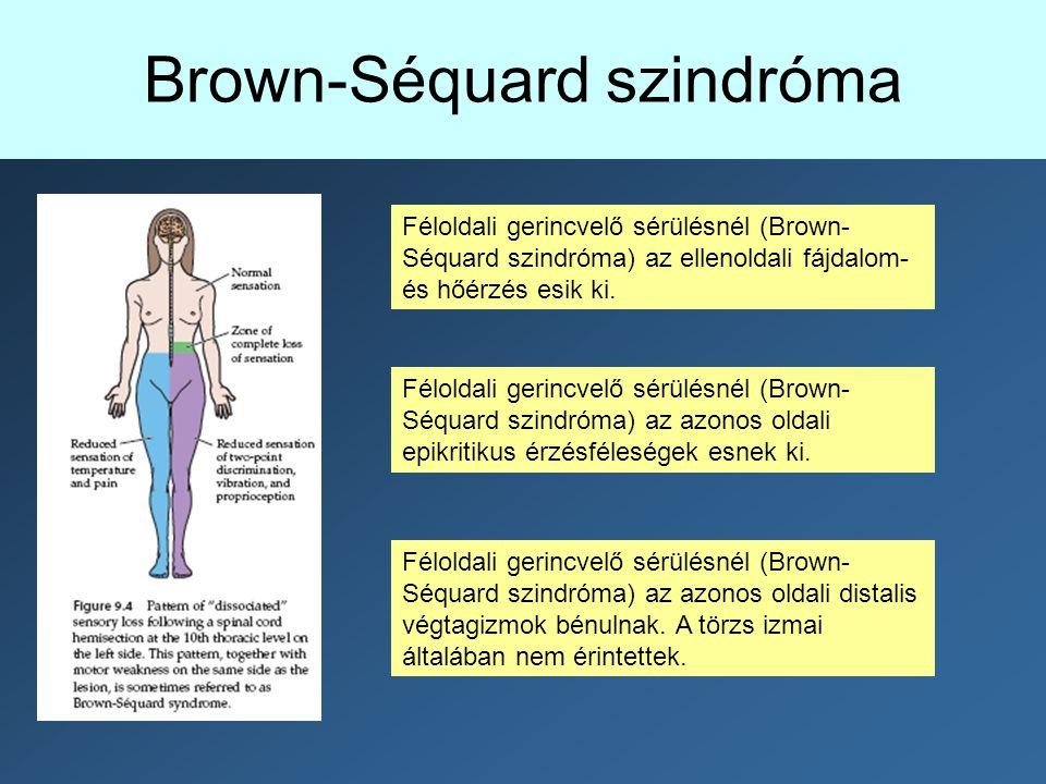 Brown-Séquard szindróma