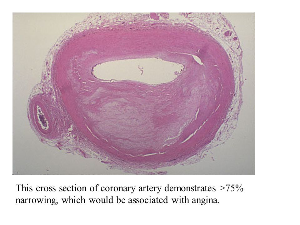 This cross section of coronary artery demonstrates >75% narrowing, which would be associated with angina.