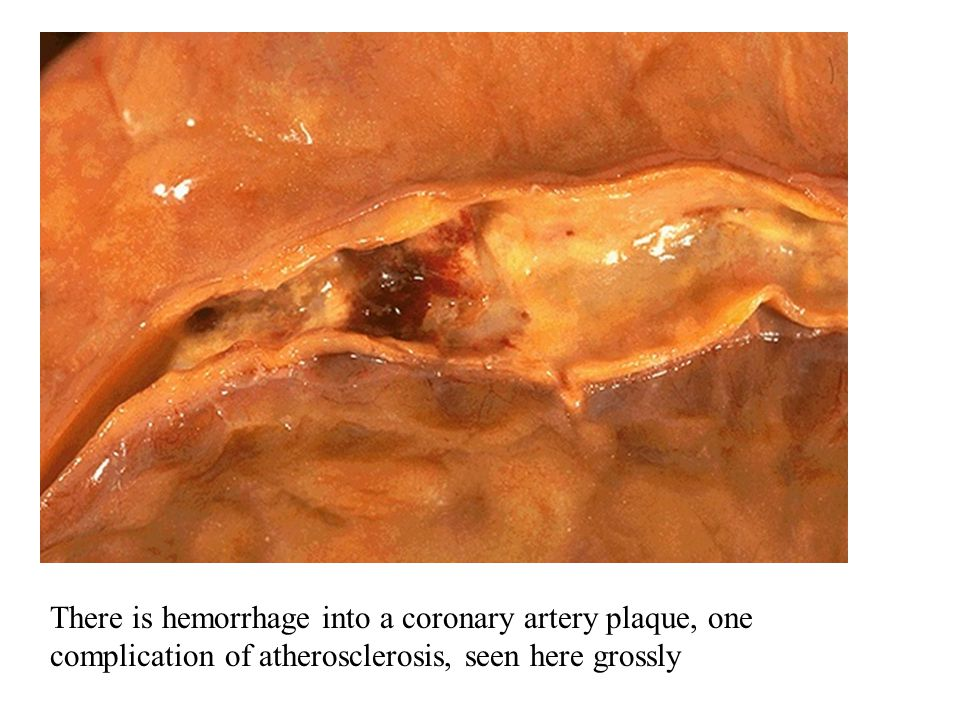 There is hemorrhage into a coronary artery plaque, one complication of atherosclerosis, seen here grossly