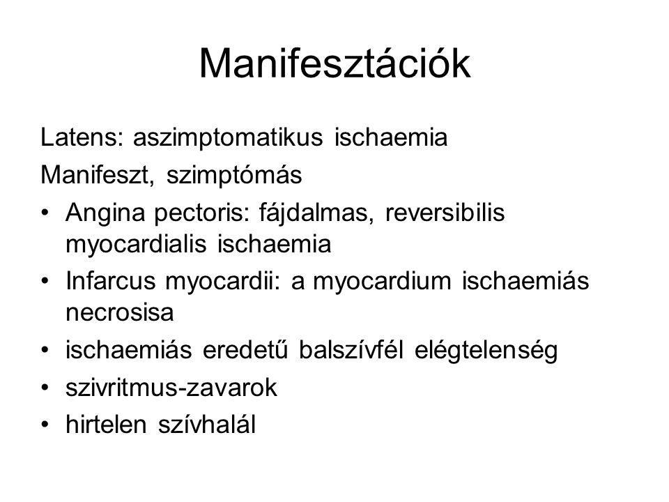 Manifesztációk Latens: aszimptomatikus ischaemia Manifeszt, szimptómás